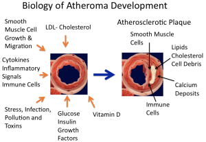 Biology of Atheroma Development